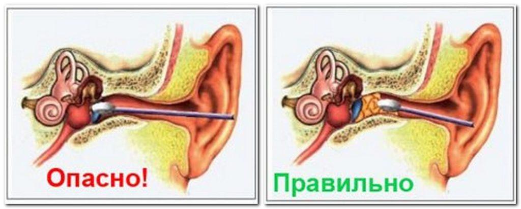 чистка ушей ушной палочкой