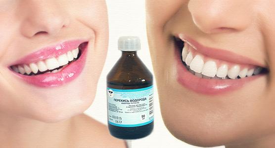 отбеливание зубов перекисью