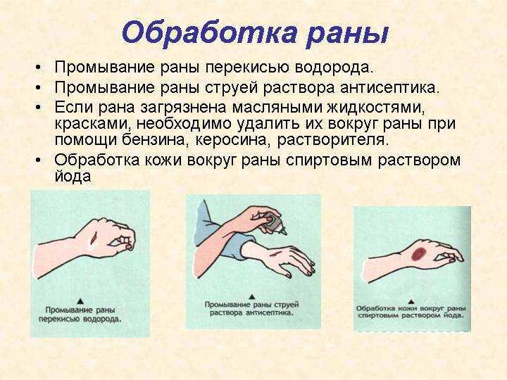 схема обработки раны