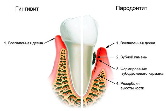 воспаленный зуб