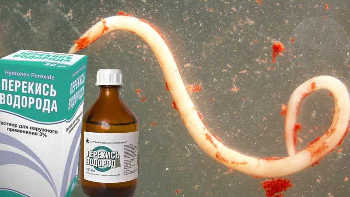 действие перекиси водорода на паразитов