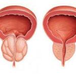 лечение простатита перекисью водорода