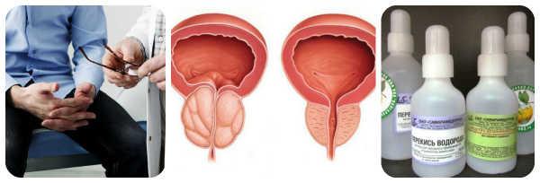 Простатита у мужчин его лечение и профилактика